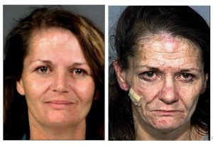 drug-addiction-before-and-after